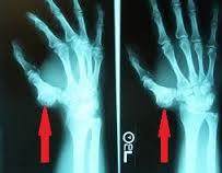 condromatoza genunchiului cum să tratezi articulațiile și tratamentul cartilajelor
