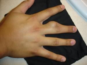 tratament articular al corpului condrom