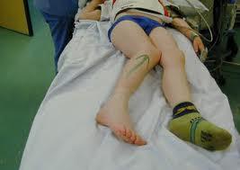 care sunt medicamentele pentru artroza articulației gleznei cum vindecă articulațiile picioarelor gambei picioarelor