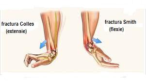 durere după o fractură în articulația încheieturii)