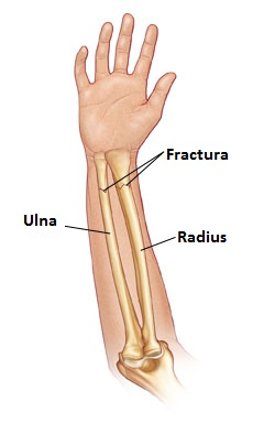 Anterior view of forearm showing fractures of the radius and ulna referenced from WWW: http://www.wheelessonline.com/ortho/pediatric_distal_radius_fracture Atlas of Human Anatomy, 2nd ed., Netter