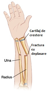 Anterior view of forearm with growth plates showing a Displaced fracture of the Radius and Ulna referenced from WWW: http://www.wheelessonline.com/ortho/pediatric_distal_radius_fracture Atlas of Human Anatomy, 2nd ed., Netter