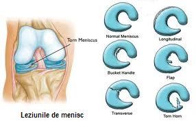 leziune grad 3 corn posterior menisc intern)