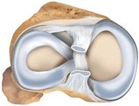 endo_healthymeniscus