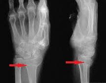 fractura stiloida radiala artrita tratamentul prognostic al articulației genunchiului
