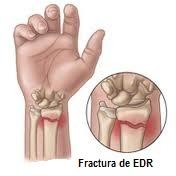 fractură de mână cu tratament de deplasare Arcoxia pentru artroza articulației șoldului