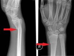 fractura stiloida radiala intepaturi de albine pentru dureri articulare
