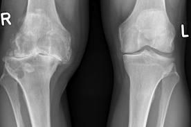 tratament cu folie pentru durerile articulare artroza tratamentului de exacerbare a genunchiului