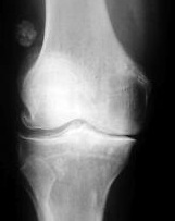 gonartroza 2 3 grade a tratamentului articulației genunchiului