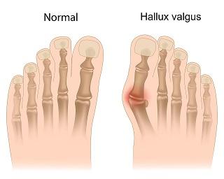 operatie monturi picioare unguent pentru durere în articulațiile mâinilor