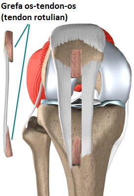 knee_acl_patellar_tendon_rationale01