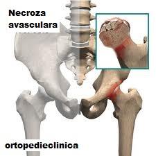 tratamentul osteosclerozei genunchiului subcondral)