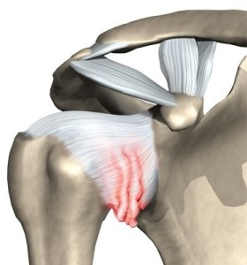 shoulder_adhesive_capsulitis_intro01
