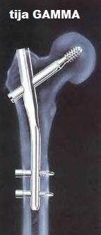 Tratamentul herniei coloanei vertebrale Bubnovsky