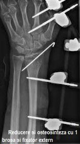 fractura stiloida radiala)