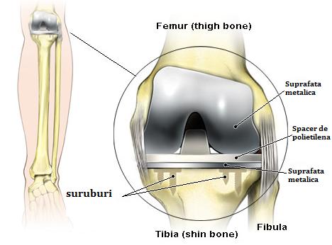 proteza de genunchi recuperare