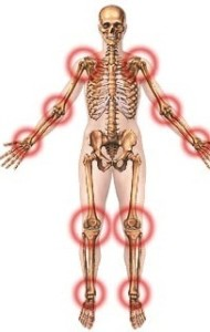 Artrita psoriazica – cauze si tratament