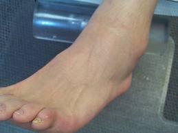 piciorul meu se umflă și furnicături