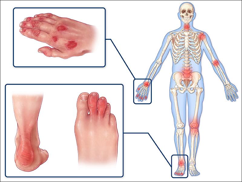 de ce se frământă genunchii boli articulare și tratament