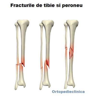 dureri de genunchi după fractură