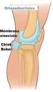nod dureros în spatele gambei mele