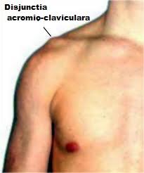 artrita claviculară)