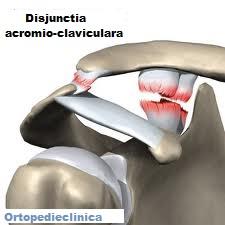 deteriorarea ligamentelor articulației acromioclaviculare drepte boala articulațiilor mâinilor și tratamentul acestora