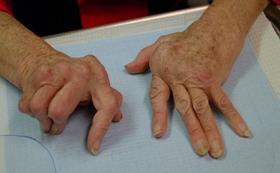 dermatita atopica tratament homeopat osteoporoza simptomi