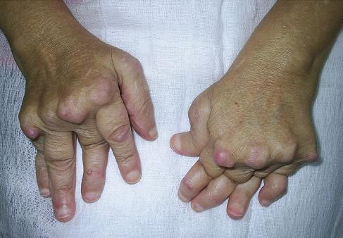 crema derma e psoriazis tratament medicamentos