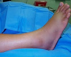 Recuperarea fracturii gleznei - Diagnosticare