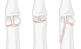 umflarea articulației după fractură