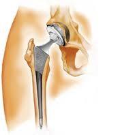 ce dureri după artroplastia șoldului)