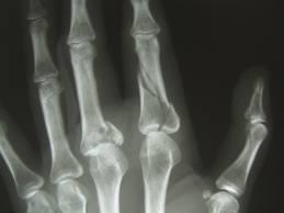 artrita infecțioasă a articulației degetului pe braț