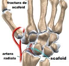 Demontarea miturilor privind fractura osului scafoid - Dr. Vilcioiu Daniel
