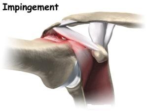 1-shoulder_cuff_tear_arthropathy_causes01-300x225