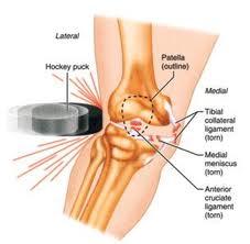 Osteocondrita disecantă