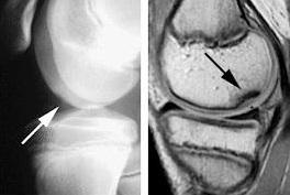 cum să tratăm osteocondrita disecantă a genunchiului)