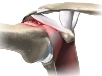 sindrom de afectare a tratamentului articulației umărului drept tratamentul articulației șoldului gradul 2