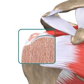 shoulder_calcific_anatomy02