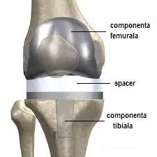 Tratarea artritei cu ulei de camfor
