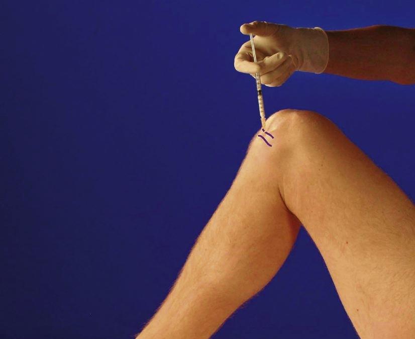 durere la nivelul genunchiului ?i piciorului
