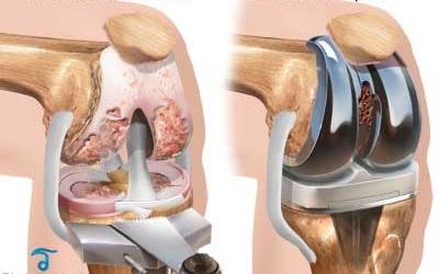lună după artroplastia genunchiului)