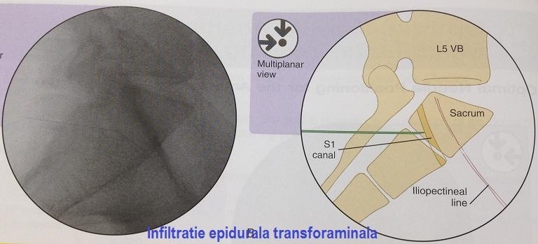 epidurala 3
