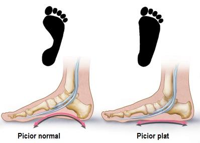 piciorul dureros deasupra și umflarea