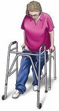 Artroplastie totala de sold (protezarea soldului) | Move&Flex