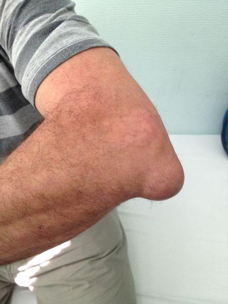 Inflamația cotului medicamente de tratament - Simptome epicondilita