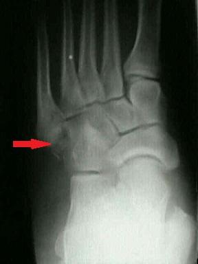 Fractură de picior | Medic Chat