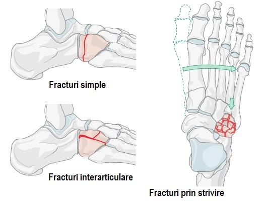 tratament articular pentru fractură