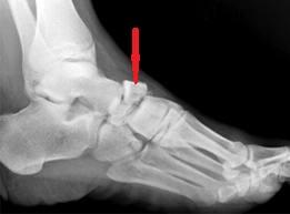 artroza unguentelor articulației genunchiului pentru tratament articulația umărului drept doare la ridicarea brațului
