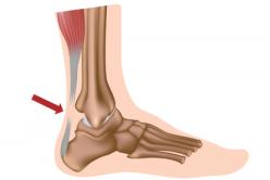 restaurarea piciorului după operația internă